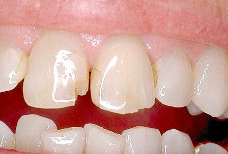 Что такое реставрация зубов