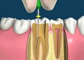 Болит зуб после удаления нерва, что делать?