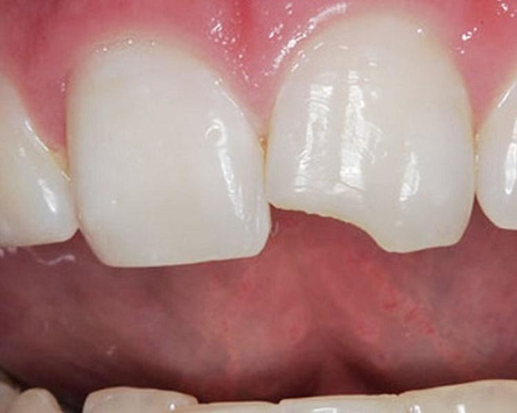 Классификация травм зуба и методы их лечения
