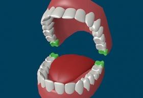 Зубы мудрости: лечить или удалять?